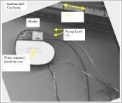 iPod pacemaker dérèglement