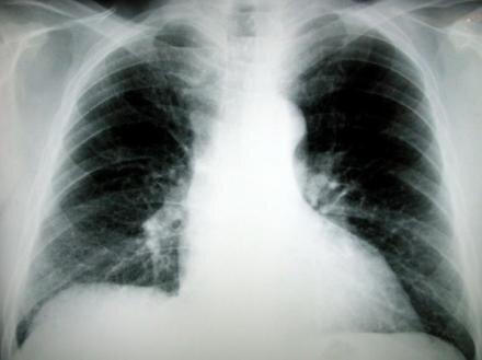 poumon radio imagerie médicale
